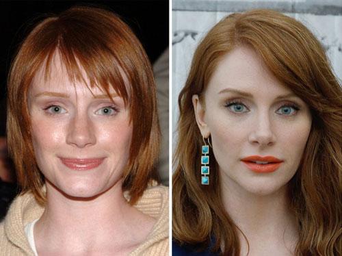 Sao Hollywood trước và sau sửa mũi