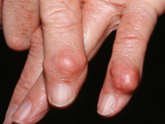 Thức uống kì diệu đẩy lùi bệnh gout ai cũng có thể tự làm